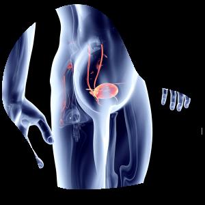 uroandrologia